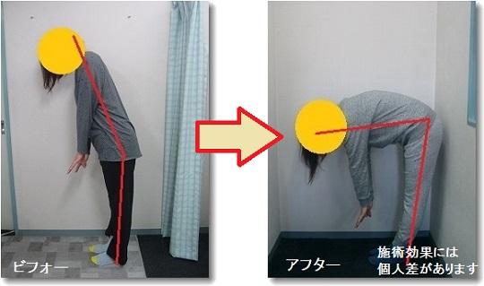 椎間板ヘルニアによる前屈改善画像