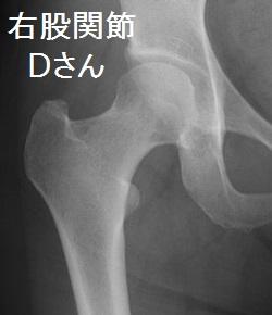 股関節痛の画像D
