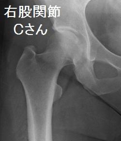 股関節痛の画像C