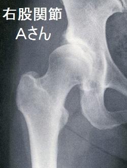 変形性股関節症の画像A